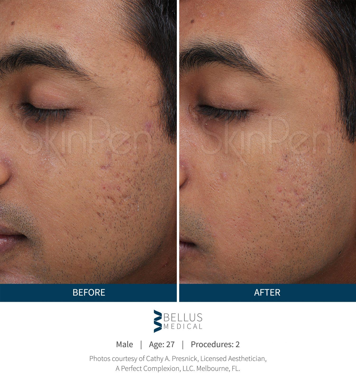 Facial rejuvenation procedure this