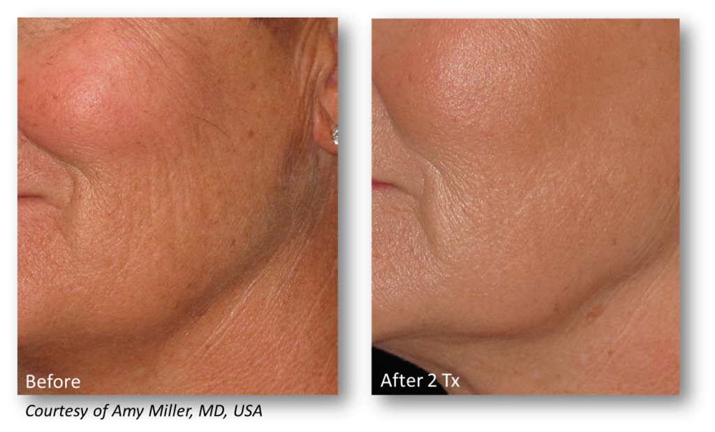 Genius RF Microneedling   Dermatology & Laser Center of