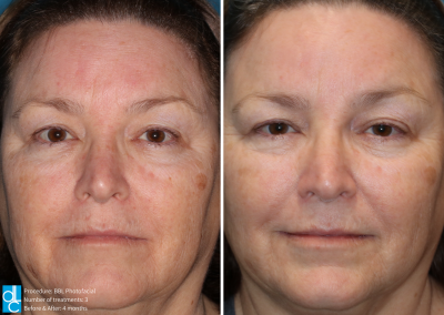 BBL Photofacial Before and After